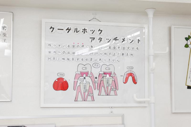 入れ歯(アタッチメント入れ歯)